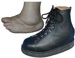 aa3aacd95b6c ortopedická obuv pre ťažko postihnutú nohu zhotovená podľa sádrového  odtlačku